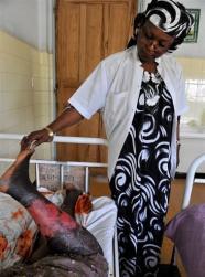 Suzanne Oumou Niang, dermatologue, examine des plaies causées par une crème éclaircissante pour la peau à Dakar, le 20 mai 2009.