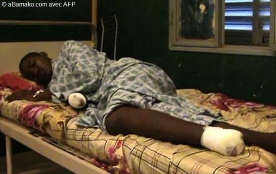 Premières images des victimes d`amputations dans le Nord-Mali.     Par AFP