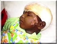 Cas du Petit Moussa: Le Quotidien de Nouakchott lance un appel.   (urgent)